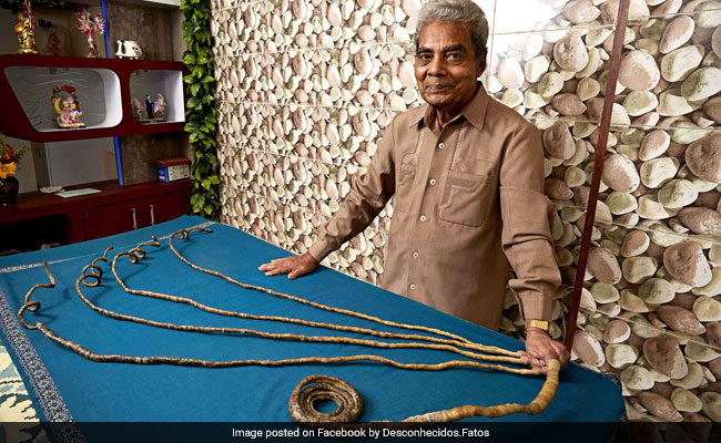 Man with world's longest fingernails finally cuts them off