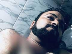 Why Brother, Shot, Waited 3 Hours For Treatment: Kafeel Khan Shares Video