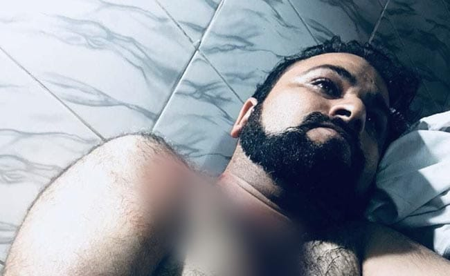 Kafeel Khan's Brother Shifted To Lucknow Hospital After His Condition Deteriorates