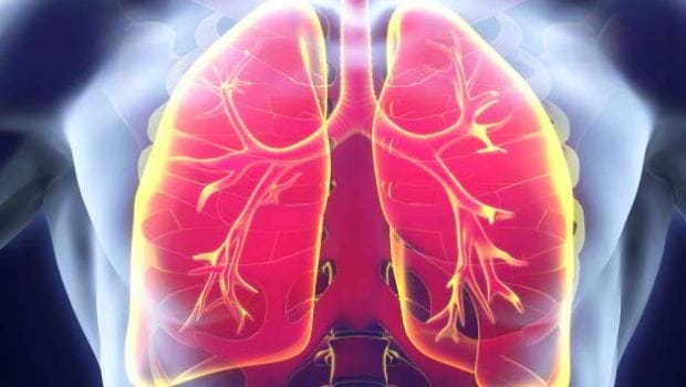 World Lung Cancer Day 2018: 8 Warning Signs Of Lung Cancer