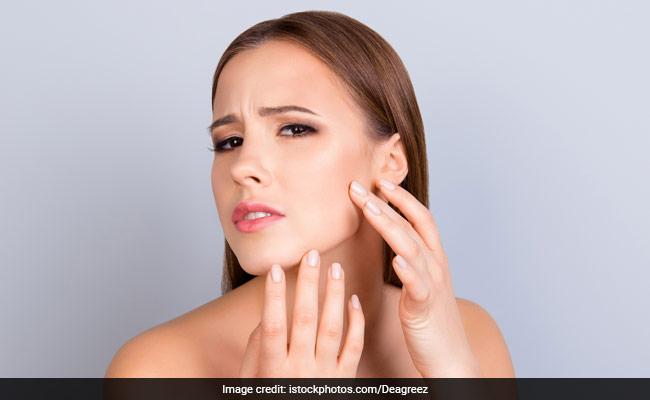oily skin care tips for summer