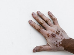 Vitiligo Day 2018: 5 Facts You Didn't Know About Vitiligo