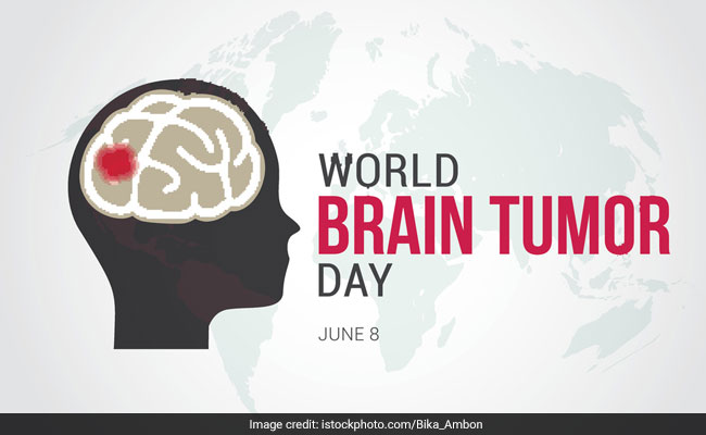World Brain Tumor Day: Causes, Symptoms And Treatment Of Brain Tumor