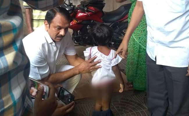 'Daddy Burnt Me When I Was Eating,' Hyderabad 4-Year-Old Tells Rescuers
