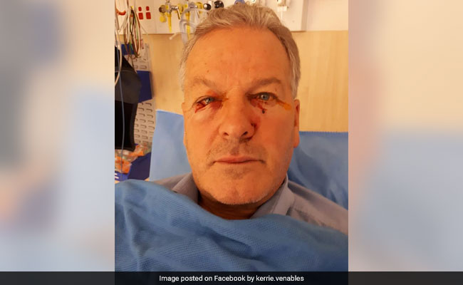 Man Undergoes Plastic Surgery After Being Attacked By 'Dead' Kangaroo