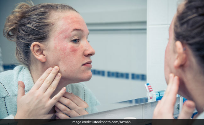 Atopic Dermatitis: 6 Effective Home Remedies To Prevent Eczema Flares