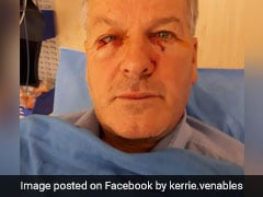 "Man Undergoes Plastic Surgery After Being Attacked By ""Dead"" Kangaroo"