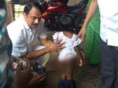 """Daddy Burnt Me When I Was Eating,"" Hyderabad 4-Year-Old Tells Rescuers"