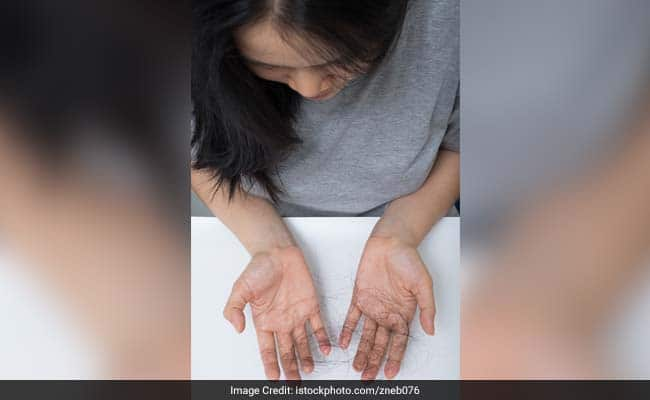 Hair Care Tips: Does Frequent Shampooing Cause Hair Fall? Dermatologist Busts Common Myths