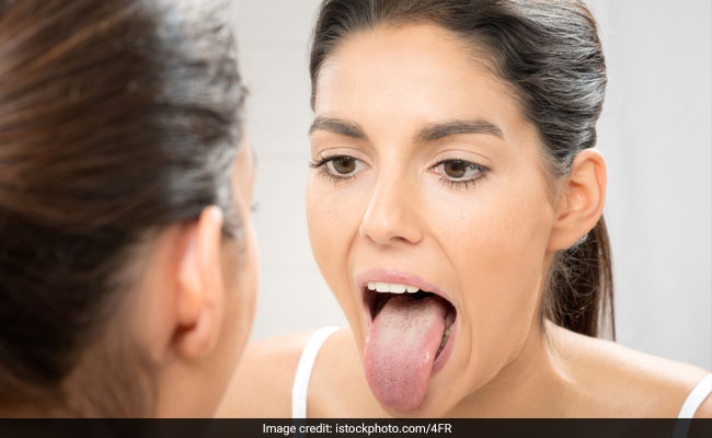 White Tongue: Causes And Tips For Prevention