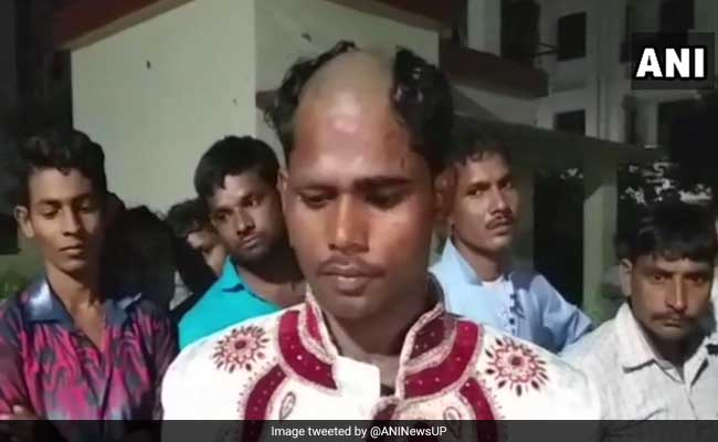 Lucknow Groom's Head Shaved Allegedly By Bride's Family Over Dowry