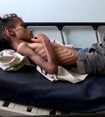 In Haunting Image Of Yemen War, A Starving Boy Is Too Weak To Cry