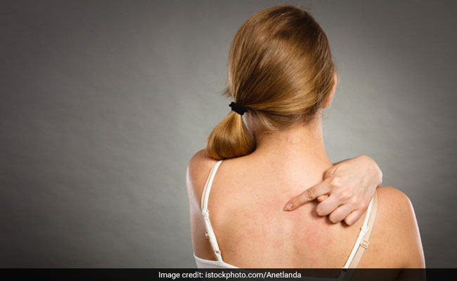 6 Natural Remedies To Get Rid Of Back Acne Once And For All