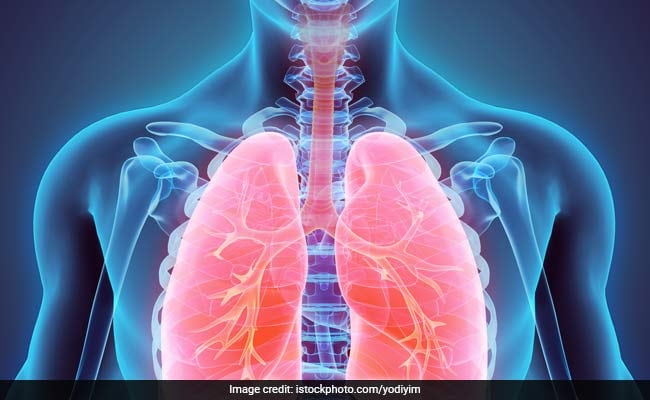 World COPD Day 2020: Expert Shares Tips To Manage COPD Symptoms During Winters