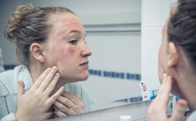 Dry Skin In Winters? Simple Home Remedies To Get Rid Of Dry Skin
