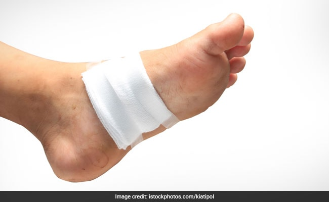 Are You Diabetic? New Shoe Insole Could Help Treat Foot Ulcers