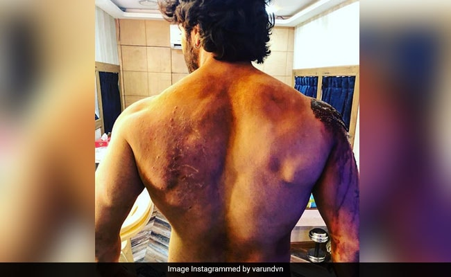 Kalank: Varun Dhawan Showcases His 'Battle Scars' In New Instagram Pic. Internet Is Very Impressed