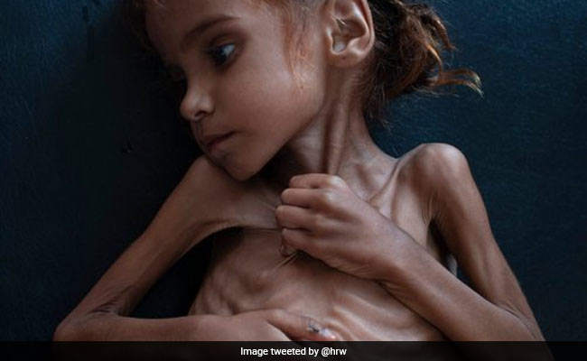 Starving 7-Year-Old Yemeni Girl, Whose Photo Sparked Outrage, Dies