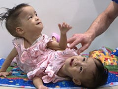 Conjoined Bhutanese Twins Who Shared Liver Separated In Australia