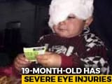 Video : 19-Month-Old, Kashmir's Youngest Pellet Survivor, Needs Several Surgeries