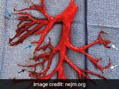Blood Clot Formed In Exact Shape Of A Lung Passage. Man Coughed It Out