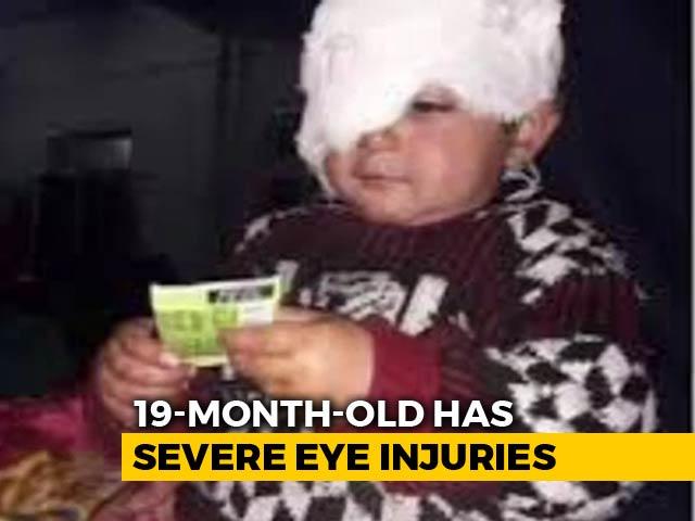 Video : 19-Month-Old, Kashmir's Youngest Pellet Survivor, Needs Several Surgeries