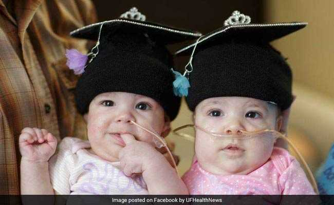 US Conjoined Twins Started Their Lives Together - But Are Going Home As 2