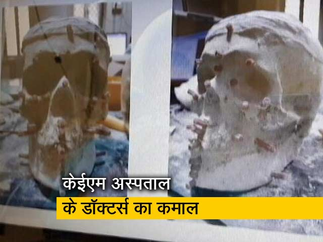 Videos : खोपड़ी ने खोला हत्या का राज