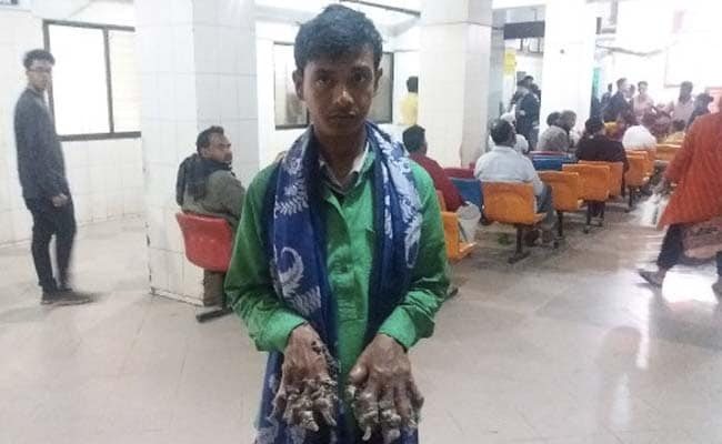 Bangladesh's 'Tree Man' Says 'Growths Even In New Parts of Feet, Hands'