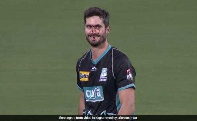 कैच पकड़ने के चक्कर में चेहरे पर लग गई गेंद, बहता रहा खून और हंसते रहा खिलाड़ी, देखें VIDEO