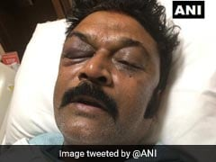 Karnataka Congress Lawmaker Files Assault Complaint Against Colleague