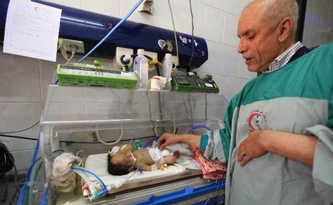 Yemeni Conjoined Twins Die Due To Lack Of Medical Equipment