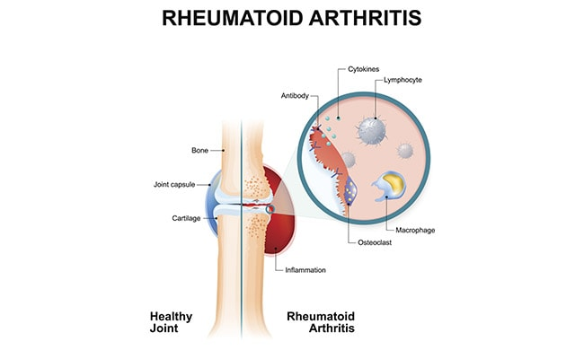 What Is The Correct Diagnosis Of Rheumatoid Arthritis?