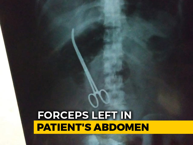 Video : Surgeons Left Forceps In Hyderabad Woman. X-Ray Found It After 3 Months