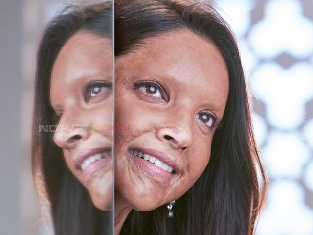 Chhapaak First Look