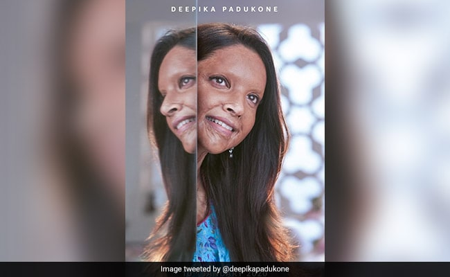 Chhapaak First Look: Deepika Padukone As Malti Will Be Remembered Forever