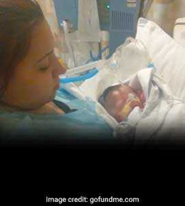 Baby Was Born With Nearly No Skin. Doctors Are Fighting To Keep Him Alive