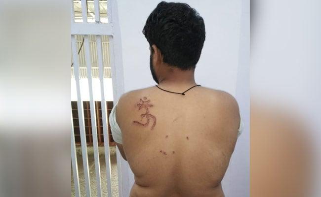இஸ்லாமிய கைதி முதுகில் 'ஓம்' முத்திரை குத்திய சிறை கண்காணிப்பாளர்!