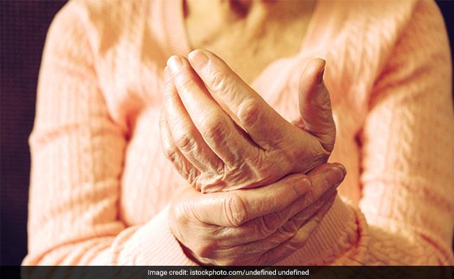 Winning Over Rheumatoid Arthritis: A Success Story