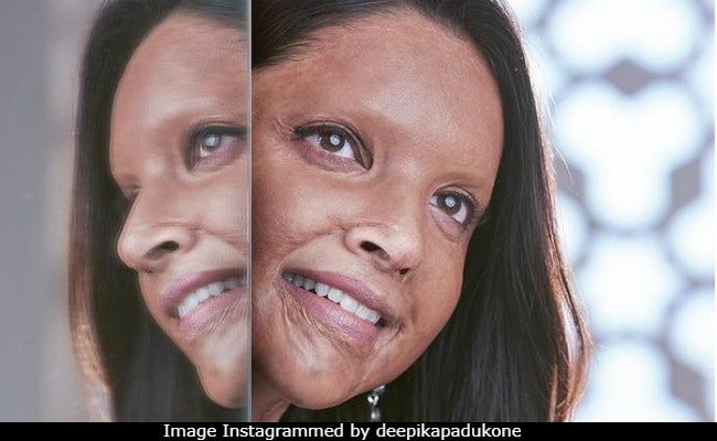 Chhapaak To Saand Ki Aankh: Bollywood Looks Beyond Skin-Deep Beauty
