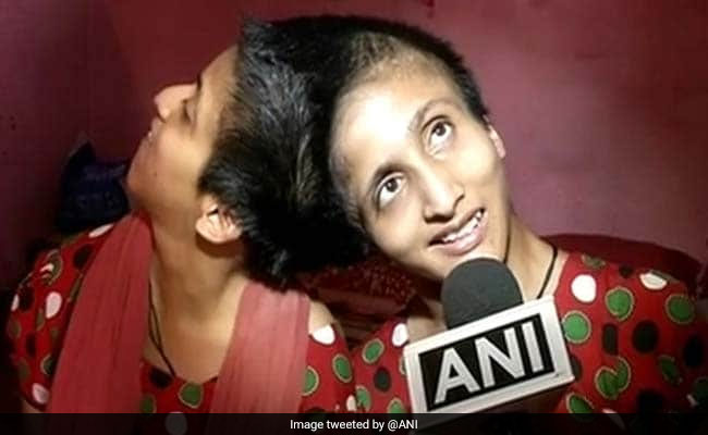 Patna Conjoined Twins Now Hold Individual Voting Rights