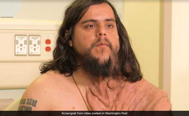 Rare Skin Disease Left Him Isolated. Surgery Gave Him Back His Life