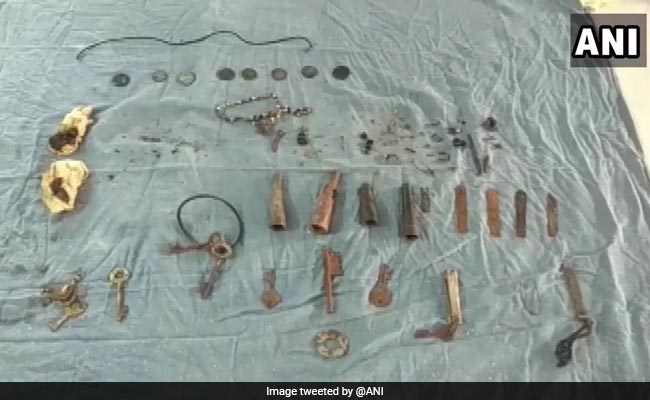 80 Objects Including Keys, Chains Removed From Man's Stomach In Rajasthan