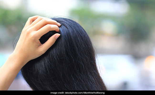 8 Hair Care Products To Use If You Have An Oily Scalp