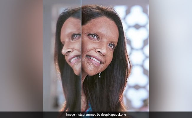 Chhapaak: Deepika Padukone Wraps 'The Most Precious Film' Of Her Career