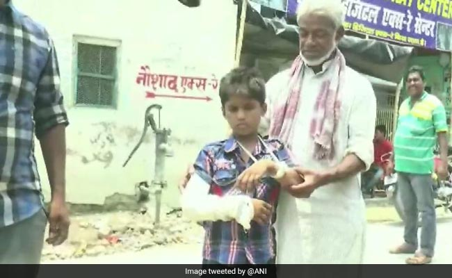 Bihar Boy Gets His Left Hand Fractured, Doctors Cast Plaster
