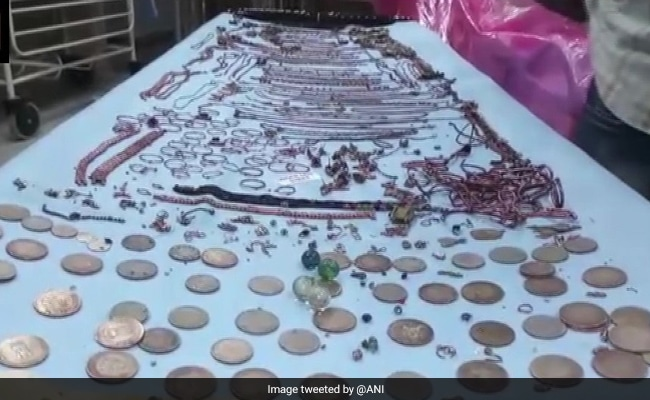 1.5 Kg Jewellery, Coins Removed From Woman's Stomach In Bengal