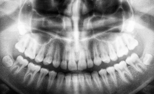 अविश्वसनीय! चेन्नई के डॉक्टरों ने 7 साल के बच्चे के मुंह से निकले 526 दांत