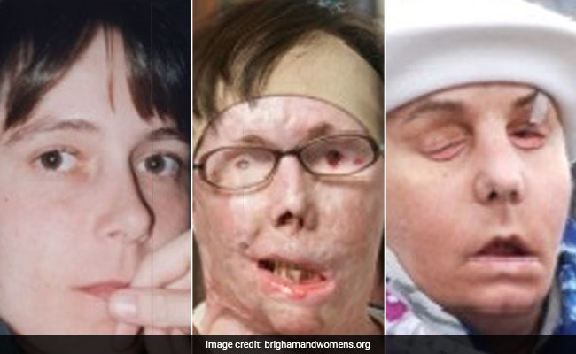 Woman Fights For A Third Face As Body Rejects Transplant