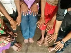 All 25 Members Of Madhya Pradesh Family Has More Than 10 Fingers, Toes
